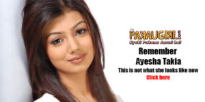 Ayesha Takia goes under the knife, Gets a New Look !!!